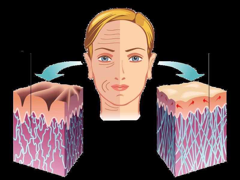 Hautprofile
