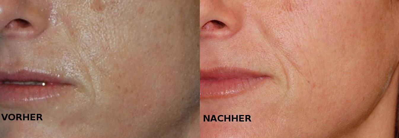 Vorher Nachher Lippenaufspritzung