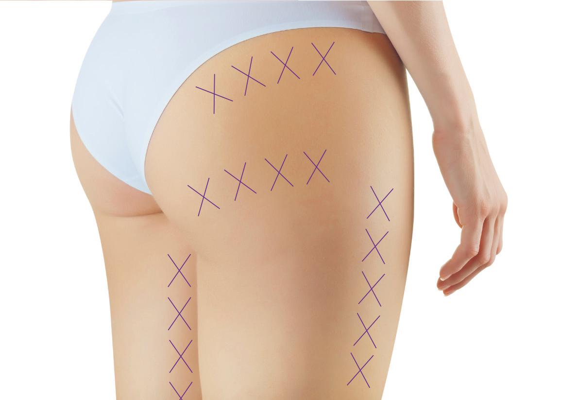 VENUS V-Line Fadenlifting Beine und Po